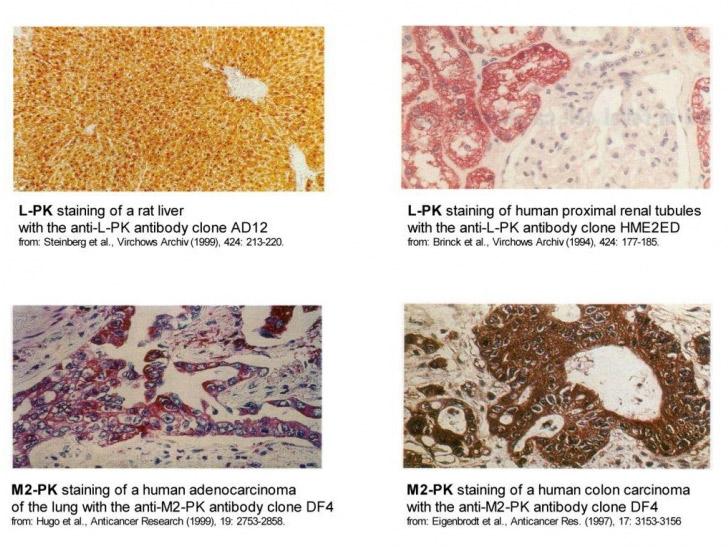 immunohistochemical-staining